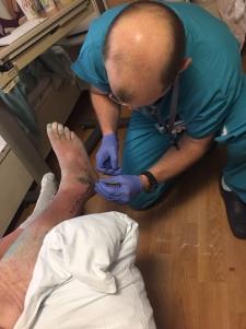 Surgeon removing stitches
